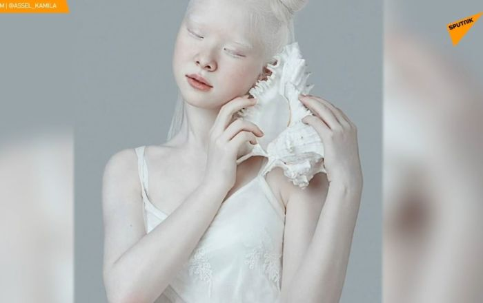 Albinosi