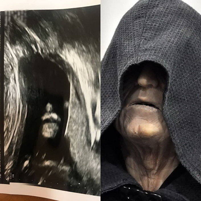 Nienarodzone dziecko okrzyknięto Mrocznym Lordem Sithów