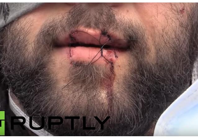Uchodźcy zaszyli sobie usta na znak protestu przeciwko zburzeniu obozu w Calais