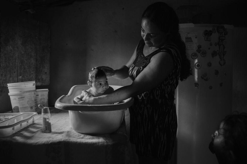 Zdjęcie Ofiary wirusa Zika. Autor: Lalo de Almeida. Drugie miejsce w kategorii Współczesne problemy - fotoreportaż.