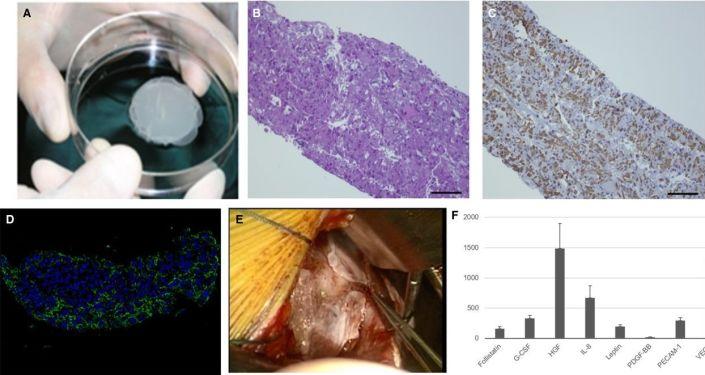 Łatki z mięśniowych komórek macierzystych do leczenia niewydolności serca