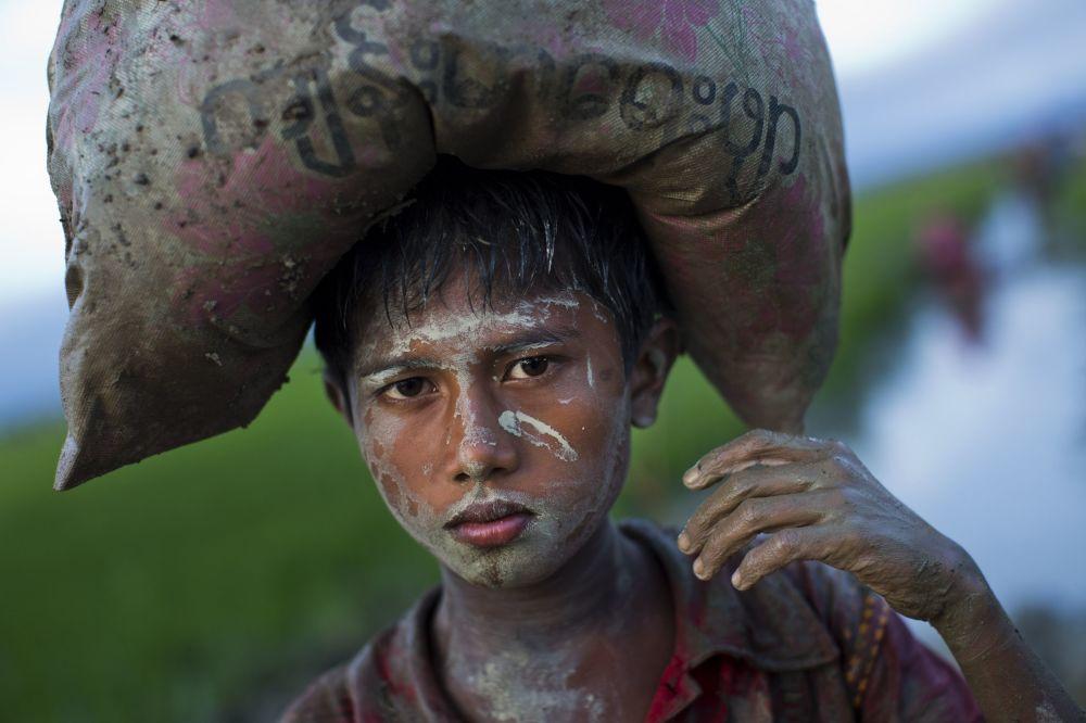 Chłopiec Rohingya z workiem na głowie w Bangladeszu