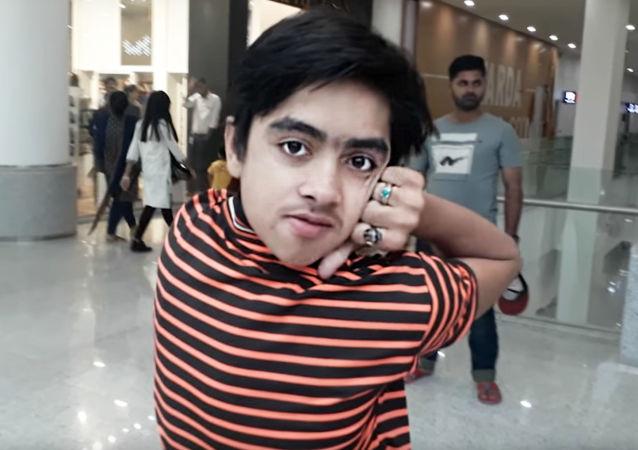 "14-letni Mohamed Samir - ""chłopak-sowa z Pakistanu"