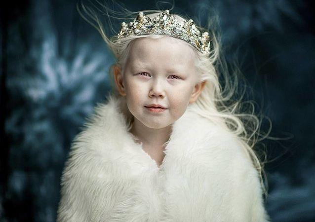 8-letnia albinoska Narijana z Jakucji