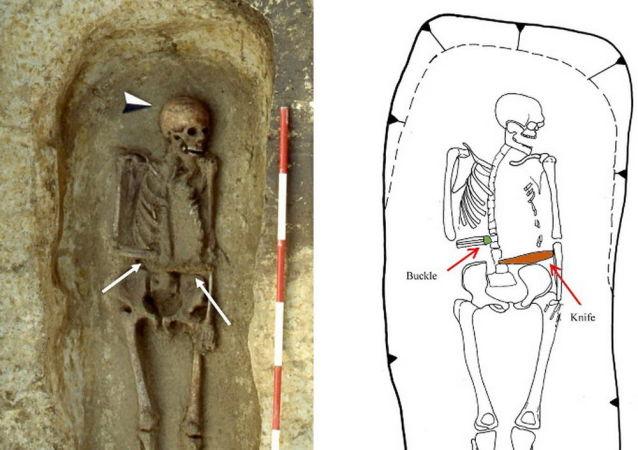 Szczątki mężczyzny z nożem w miejscu amputowanej ręki